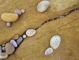 Thrombosis, Cove Bay, Moray, Scotland, stones, choked, capillary, corpuscles, stroke  photo